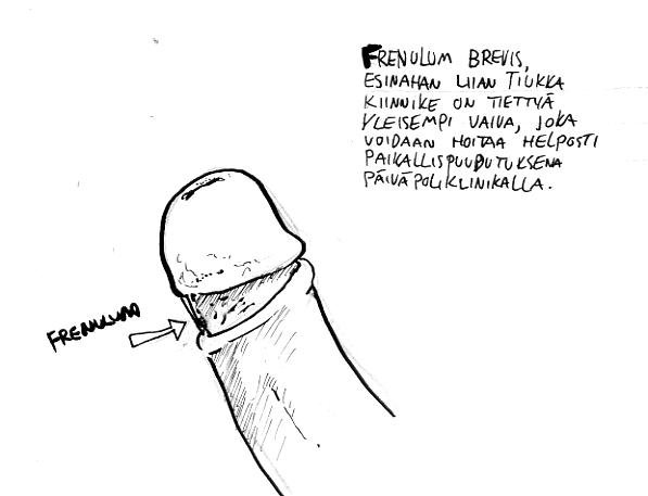 frenulum001